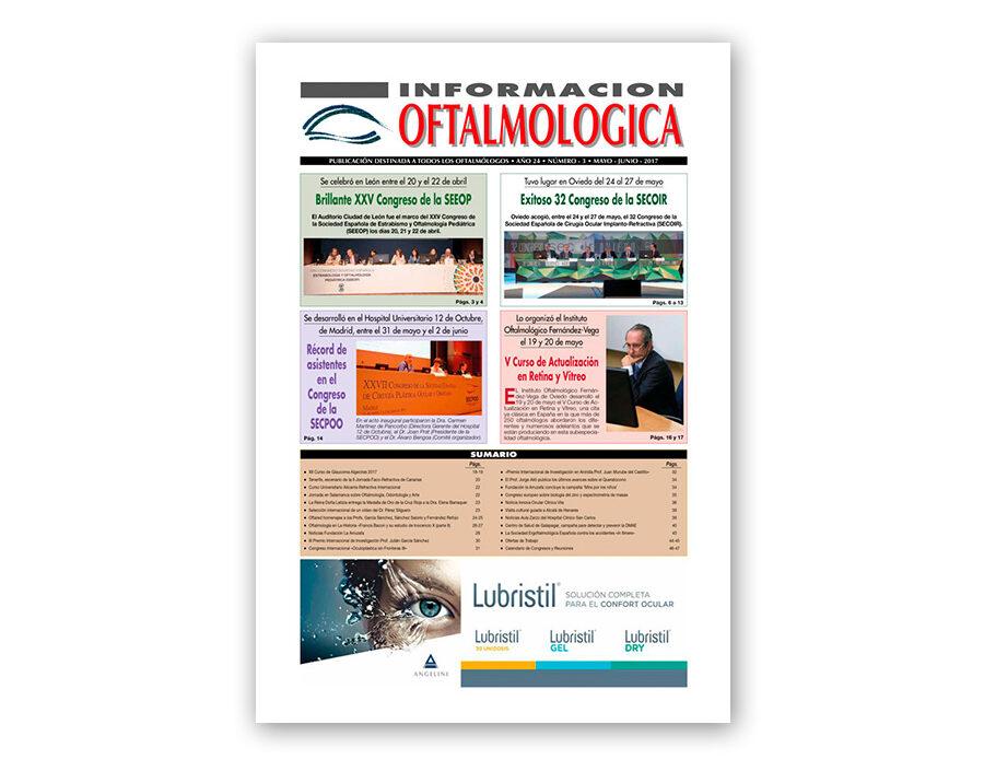 Número 3 – 2017 – Información oftalmológica